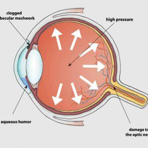 Operácia katarakty aglaukóm